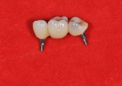 Studio Spano Marongiu Implantologia