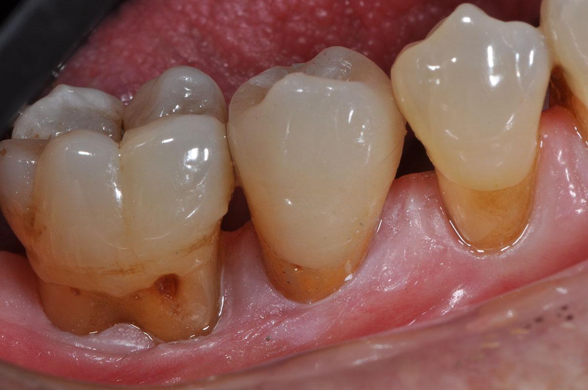 Protesi Dentaria
